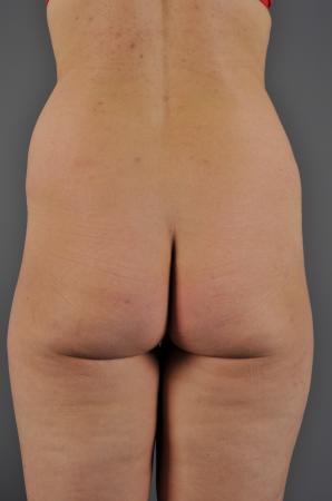 VaserLipo Before - Liposuction - Abdomen / Outer Thighs