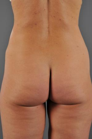 VaserLipo After - Liposuction - Abdomen / Outer Thighs